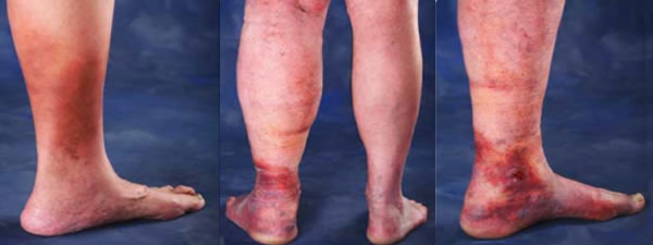 Depiction of venous insufficiency in Minneapolis.
