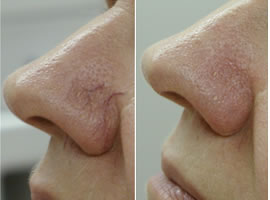 Before and after image of facial spider veins in Minneapolis.