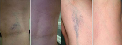 Before and after depiction of treatment for spider veins in MN.