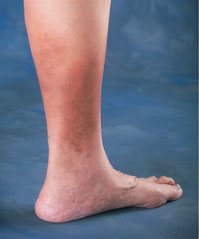 Leg with swollen ankles and protruding veins