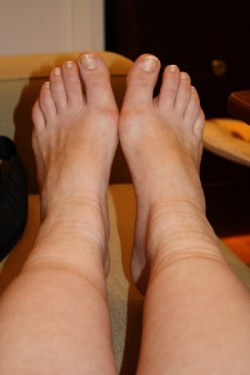 Ankle swelling and Vein Disease in the Twin Cities, Minnesota