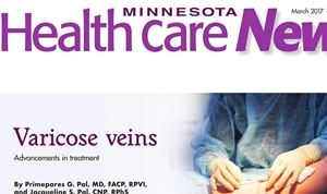 Varicose Vein St Paul Dr. Pal