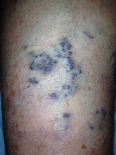 Surface bulging varicose veins susceptible to sudden bleeding. Minnesota Vein Center, St. Paul treatment methods.