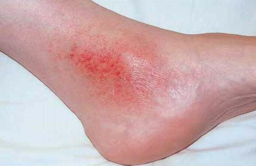 inner ankle reddened scaly rash